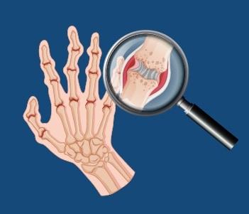 22.Osteoarthritis